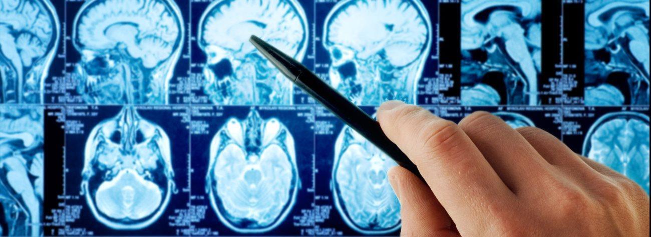 Чем агрессивней опухоль, тем она более уязвима