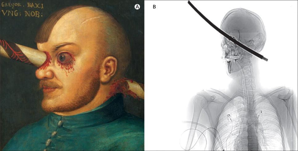 рыцарь с пробитым мозгом