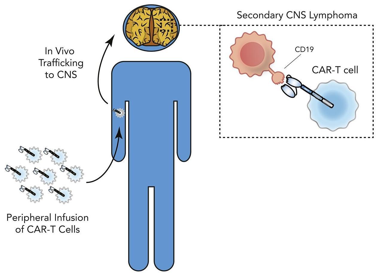 Лимфому головного мозга вылечили, «отредактировав» Т-лимфоциты