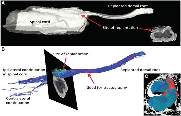 хирургия, которая помогает сенсорным путям восстанавливаться