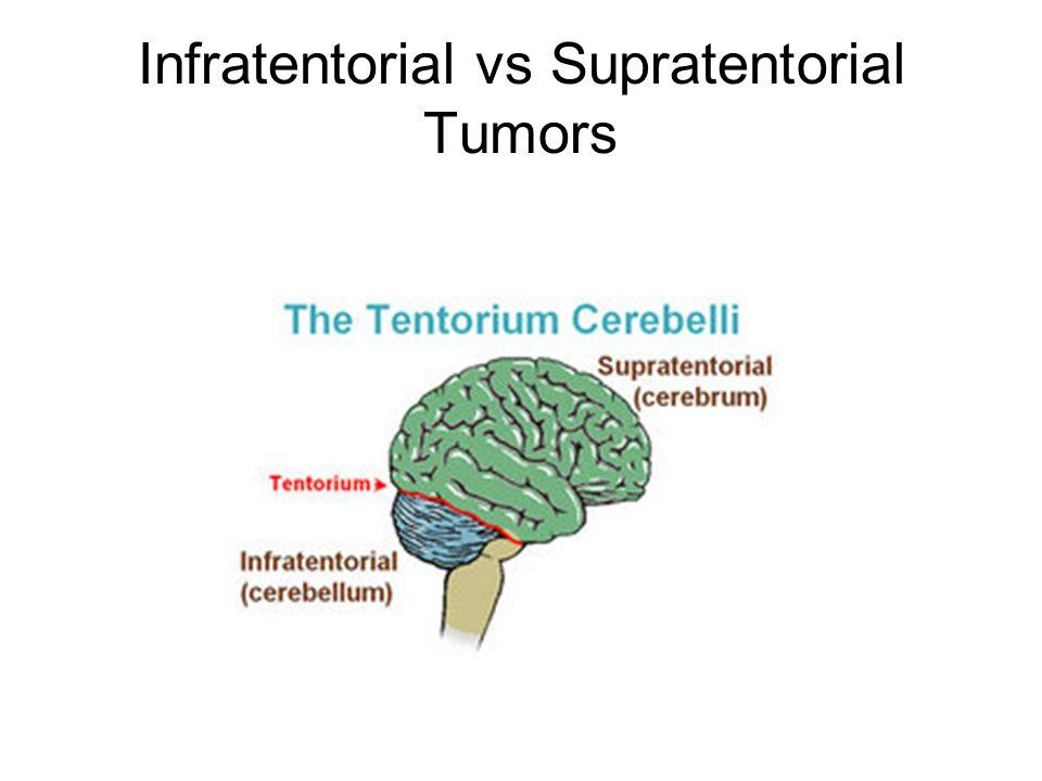 Infratentorial vs Supratentorial Tumors