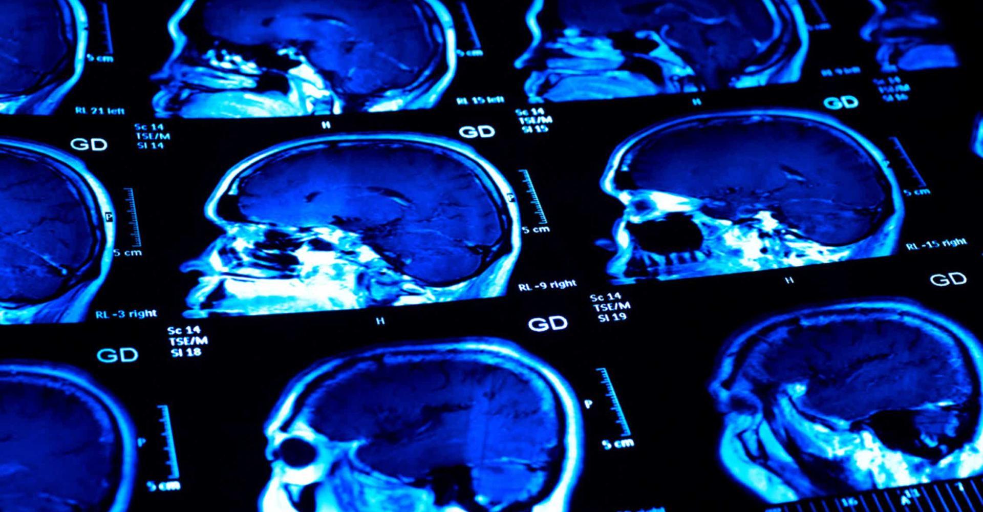 Рассеянный склероз: если пациент в депрессии, то лекарства ему не помогут