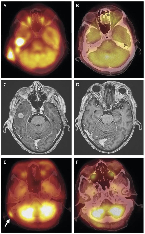 лимфому головного мозга вылечили