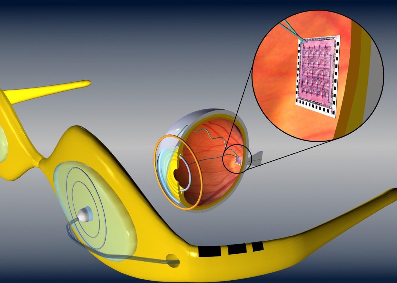 бионические глаза обещают устанавливать бесплатно