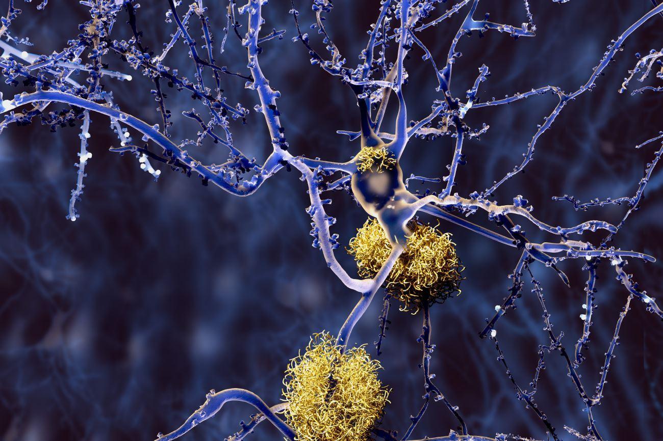 Стартовало исследование вакцины против болезни Альцгеймера