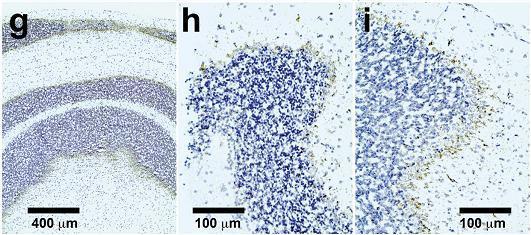 ДНК-терапия остановила нейродегенерацию у мышей
