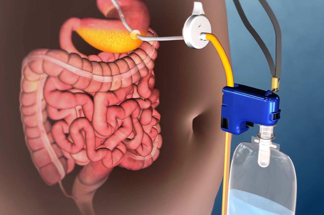 ожирение начали лечить сливом еды из желудка