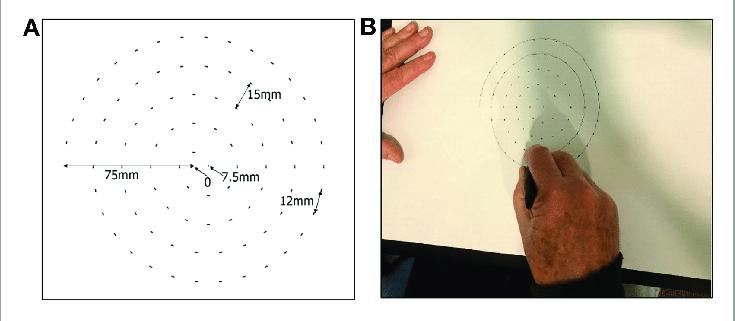 Как спираль диагностирует раннего «Паркинсона»