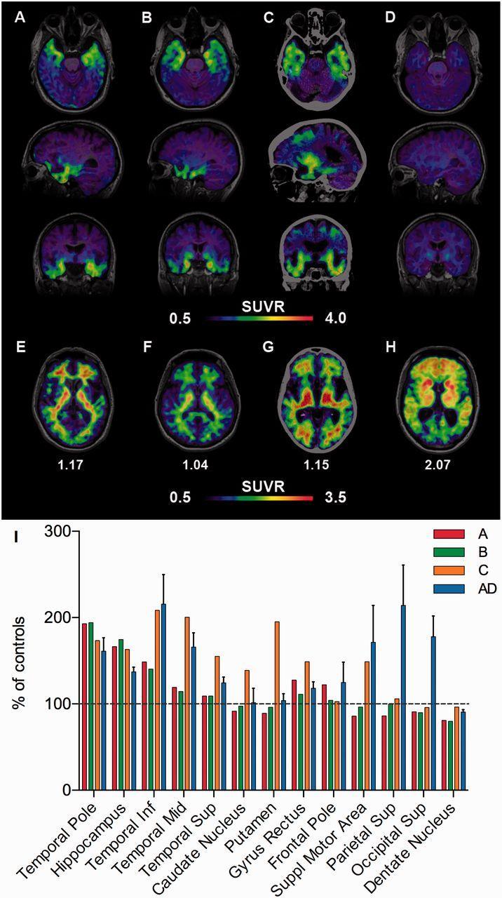 Новый метод позволит «увидеть» болезнь Альцгеймера