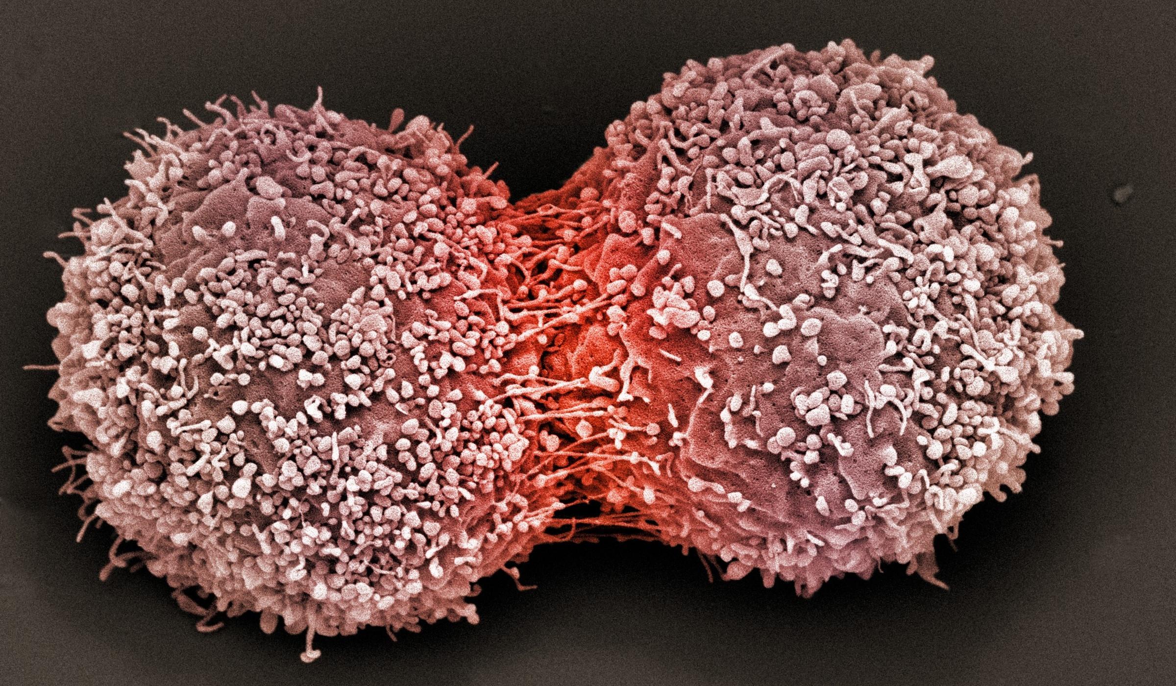 Состарившиеся раковые клетки едят молодых
