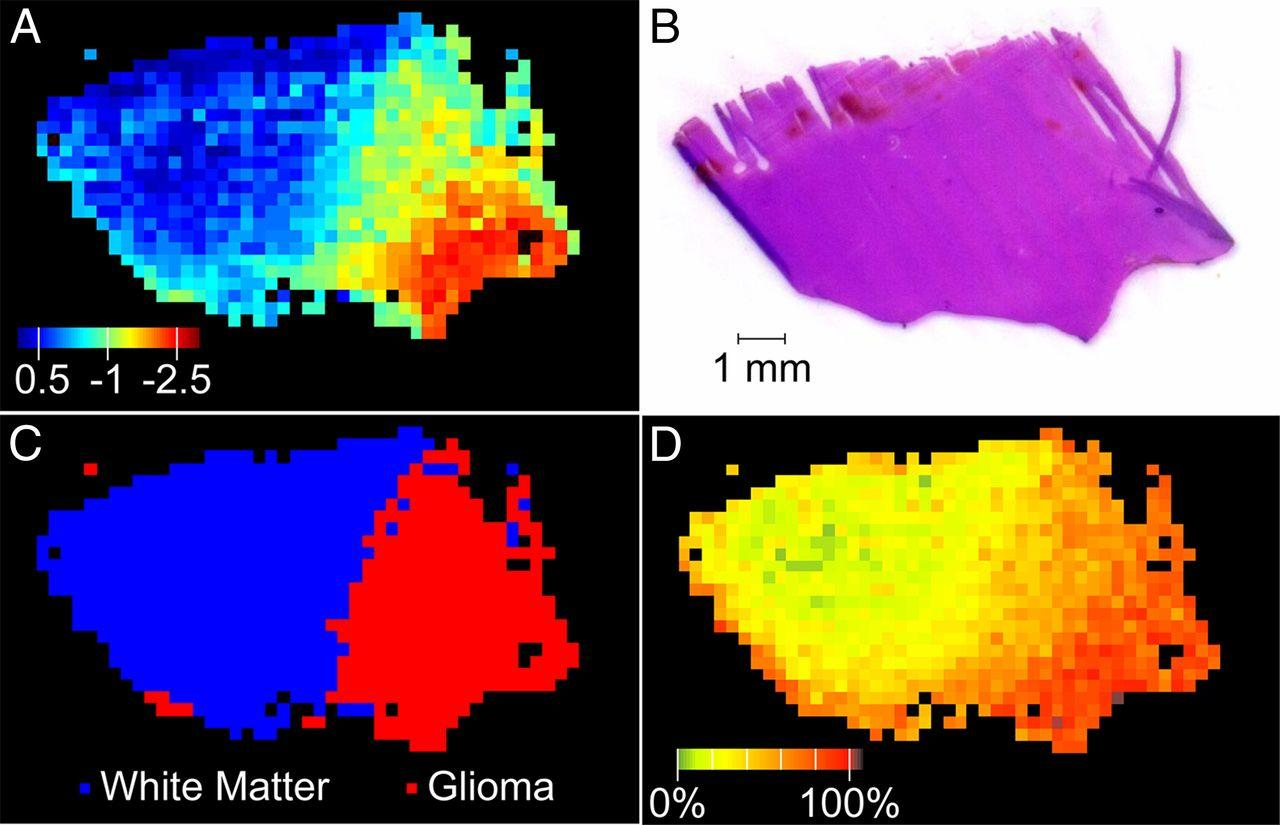 Спектрометрия мозга поможет определить границы опухоли во время операции
