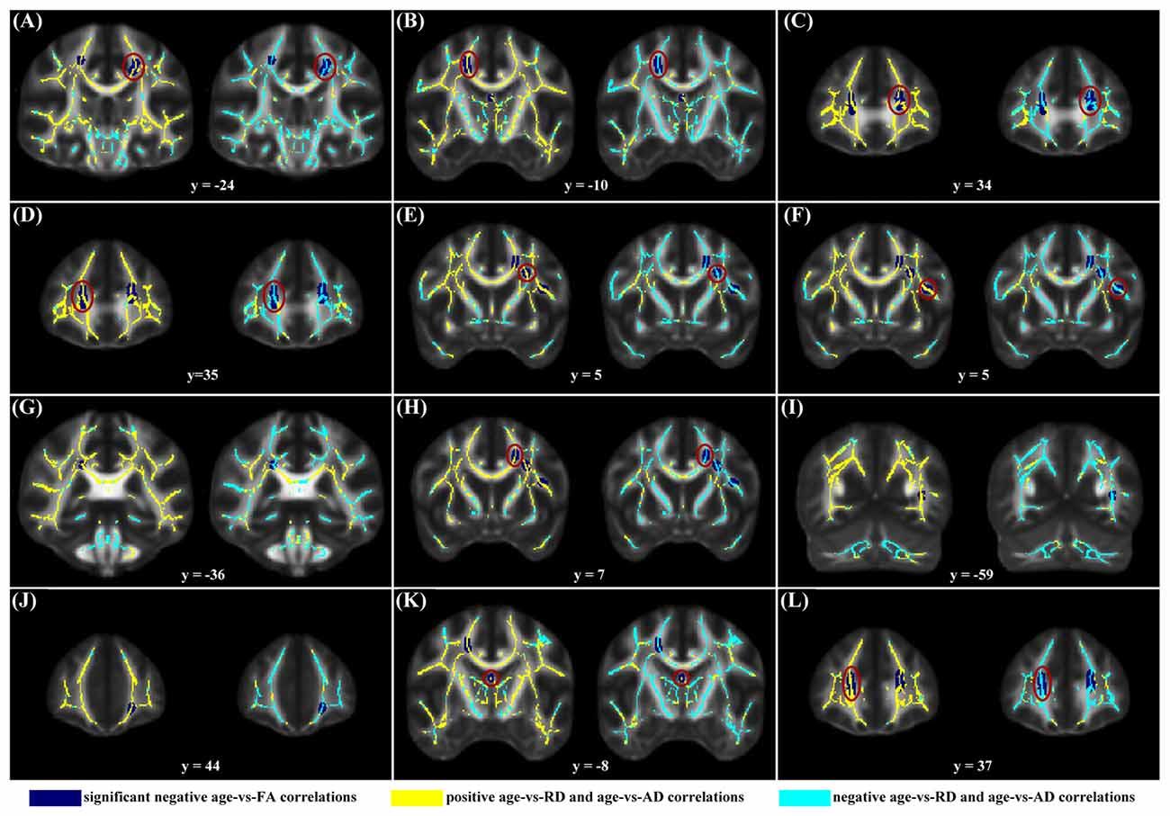 Признаки старения мозга обнаружили уже в молодости