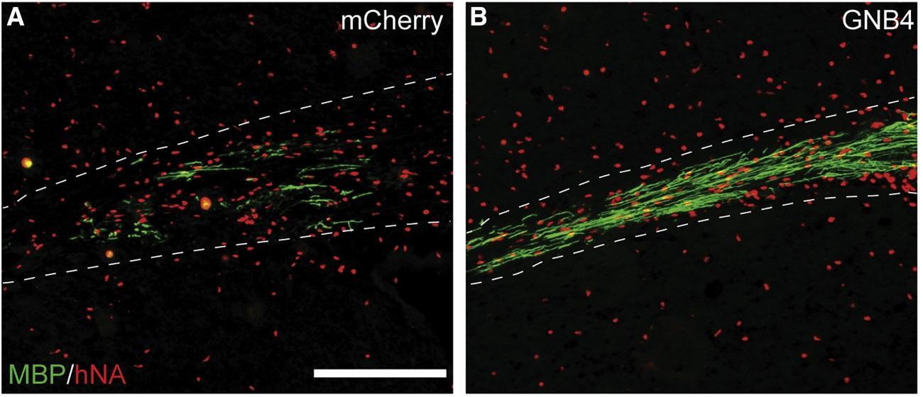 Американские ученые нашли мишень для лечения рассеянного склероза