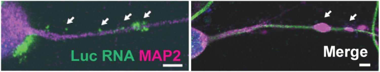 Вирусный энцефалит «захватывает» транспортные пути в нейронах