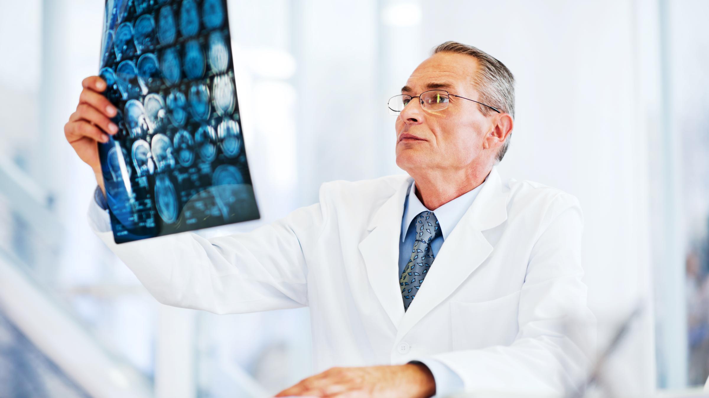 Исследована связь между ишемическим инсультом и онкозаболеваниями