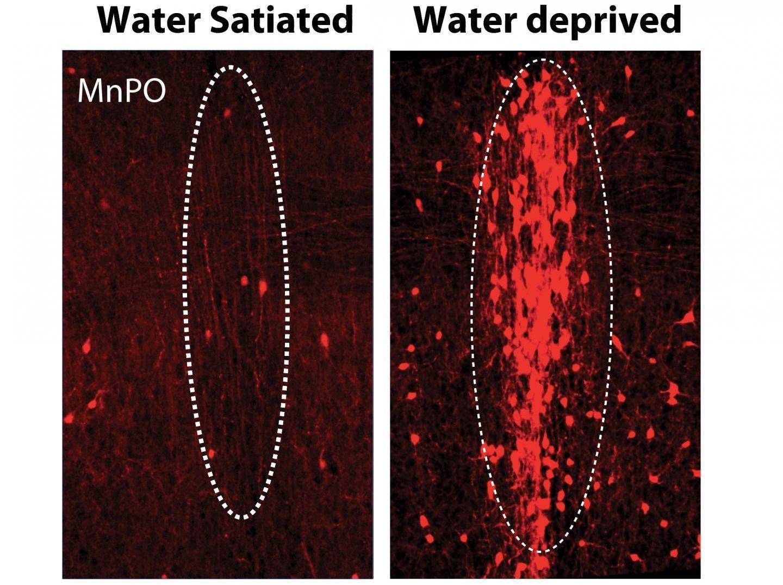 Нейроны жажды
