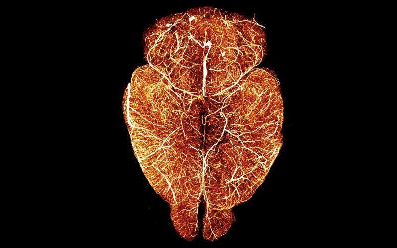 прозрачный мозг для изучения инсультов