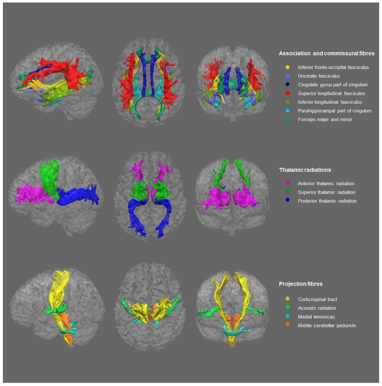 Депрессия повлияла на целостность белого вещества головного мозга