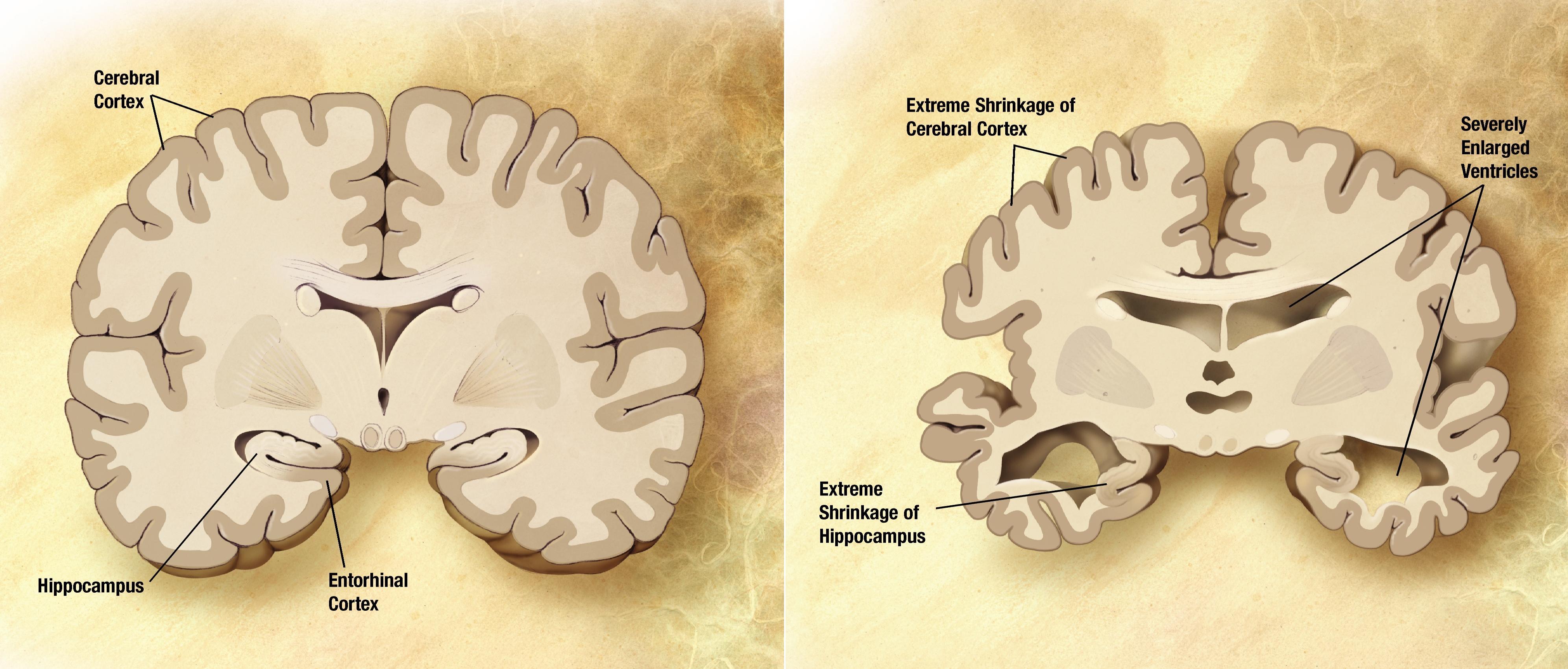 Замедленное восприятие текста поможет спрогнозировать болезнь Альцгеймера
