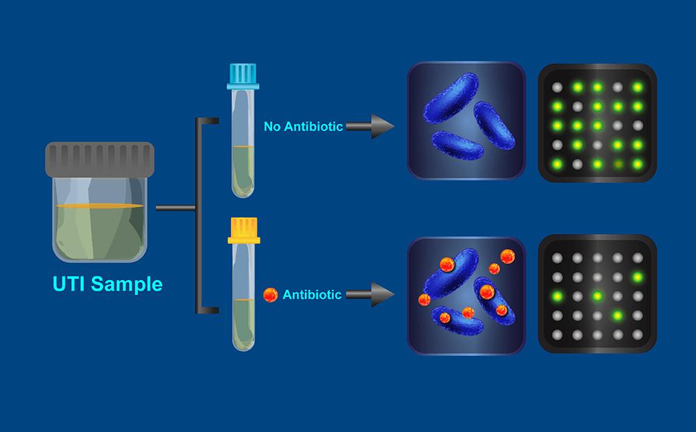 Супероружие против супербактерии: новый тест обнаружит патоген за полчаса