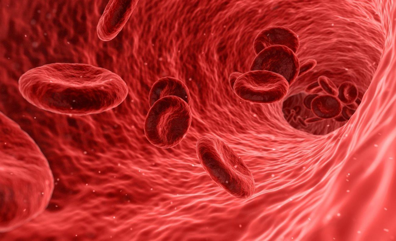 Как злокачественные опухоли связаны с тромбами