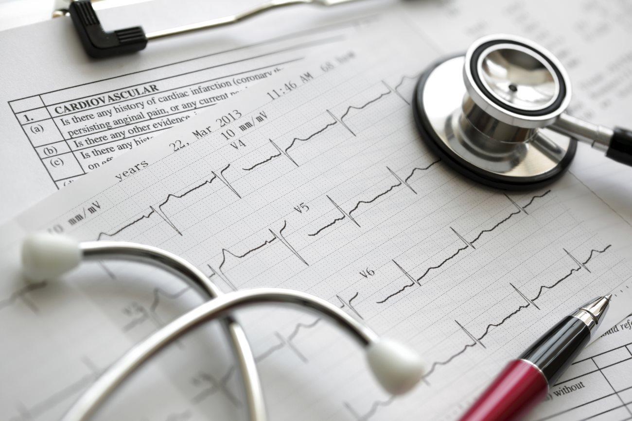 статистика смертности от инфаркта миокарда может занижаться