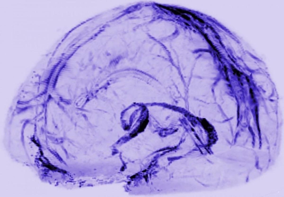 Канализация чертогов разума: лимфатические сосуды впервые найдены в мозге человека