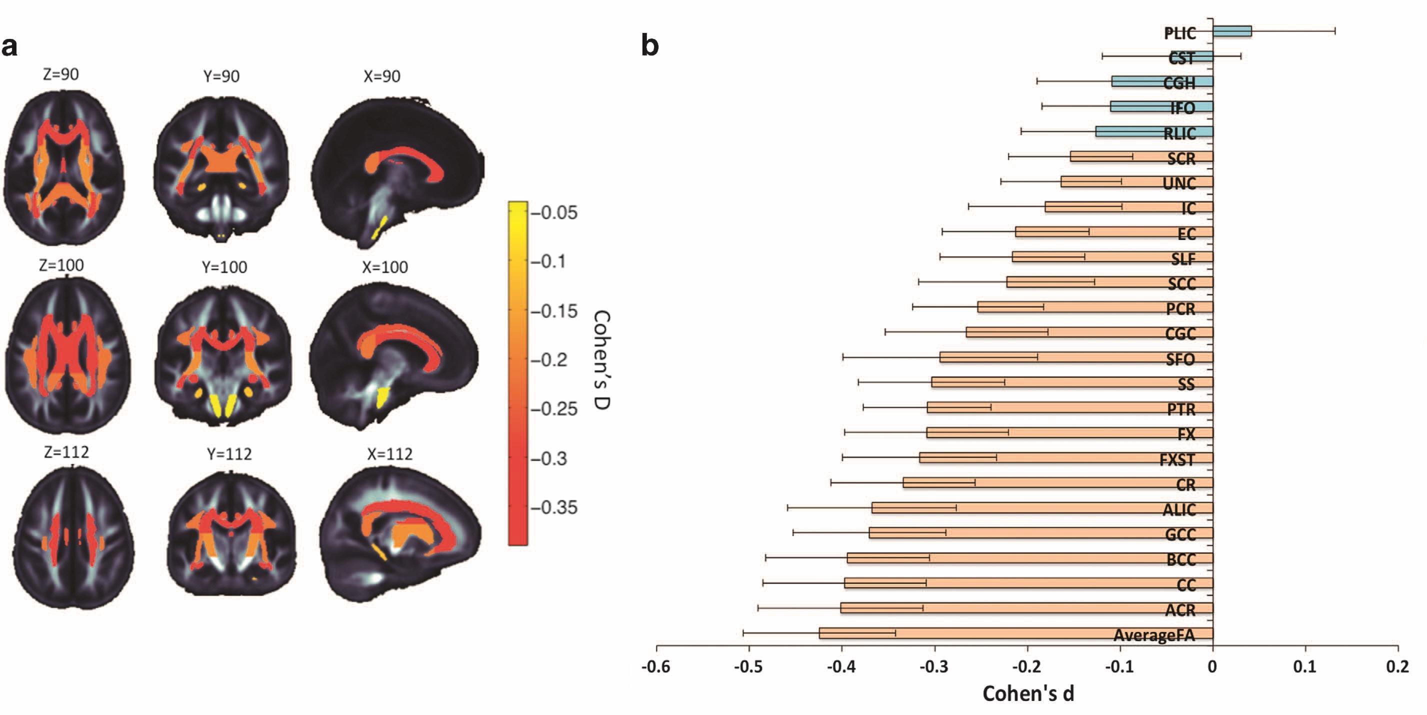 В мозге шизофреников нашли обширные нарушения структуры белого вещества