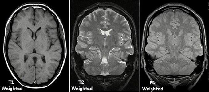 правдоподобность некоторых МРТ-исследований под вопросом