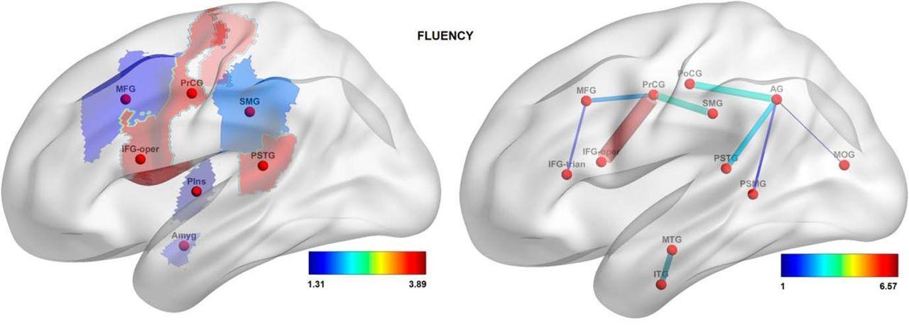 коннектом предскажет способность заговорить после инсульта