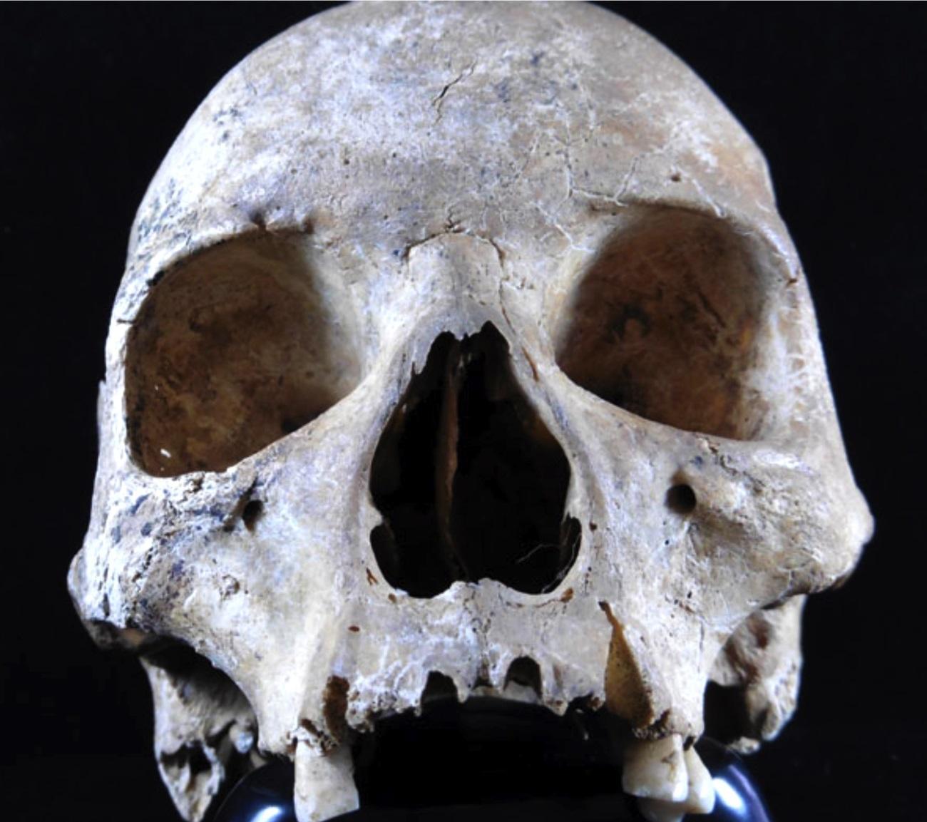 Скандинавские белки подарили проказу средневековой Англии