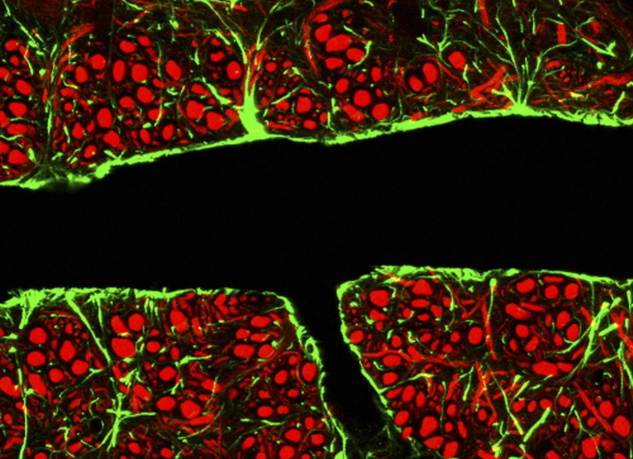 медики открыли окно в мозг для лечения болезней