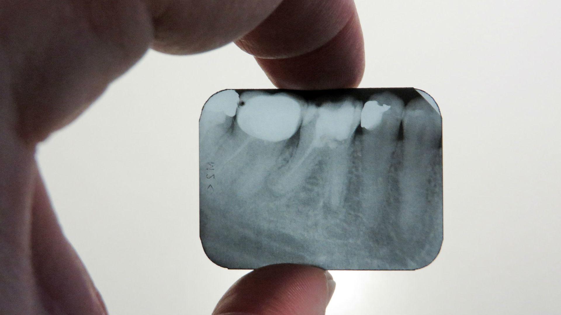 Дефицит витамина D научились выявлять по зубам