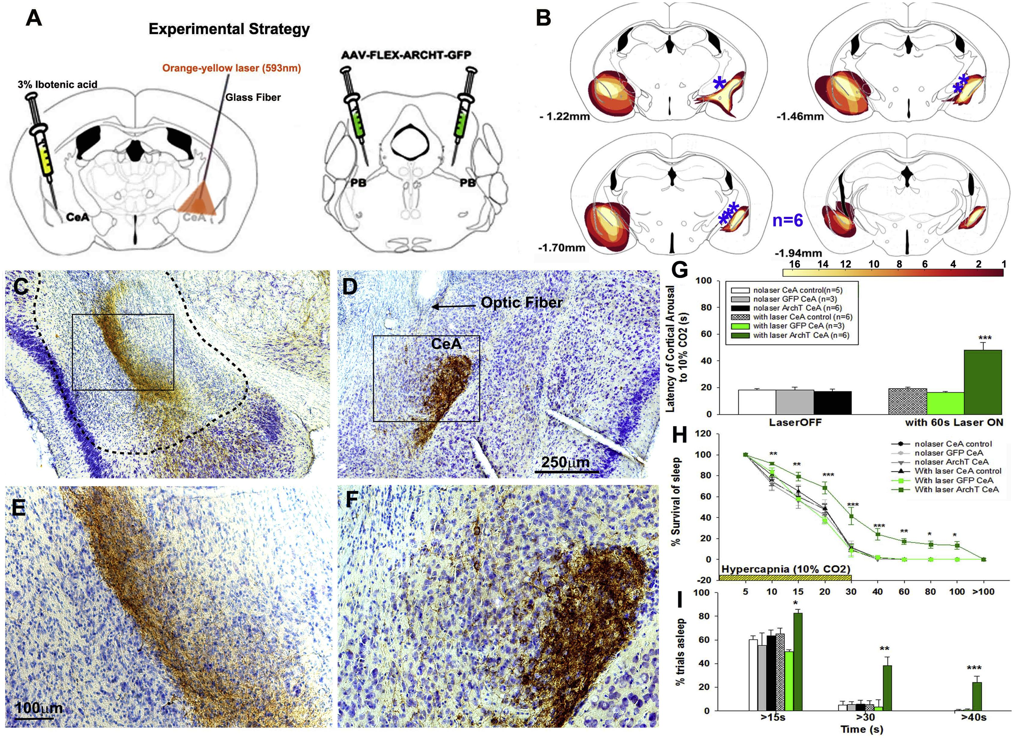 Апноэ во сне: найдены клетки, заставляющие мозг проснуться