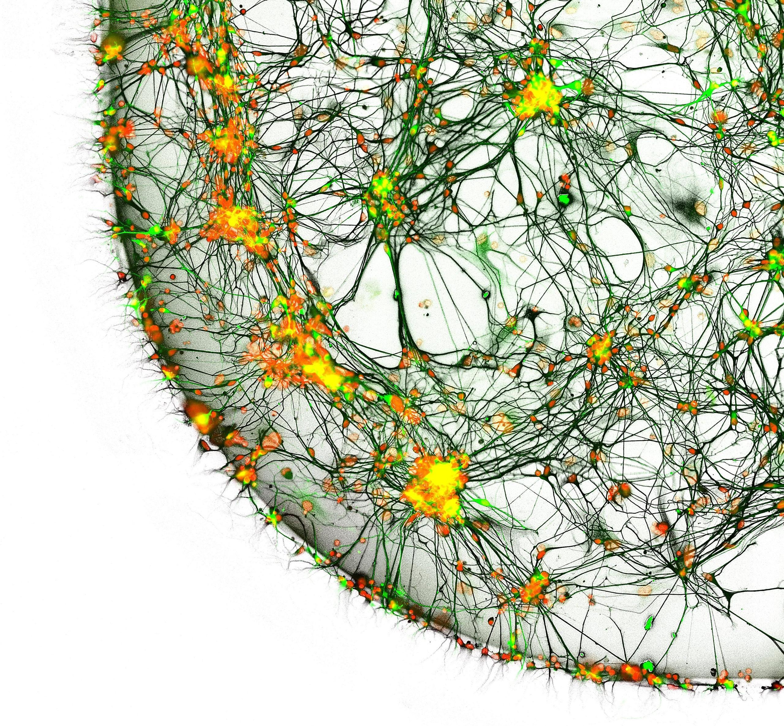 Сможем ли мы лечить болезнь Паркинсона пересадкой клеток?