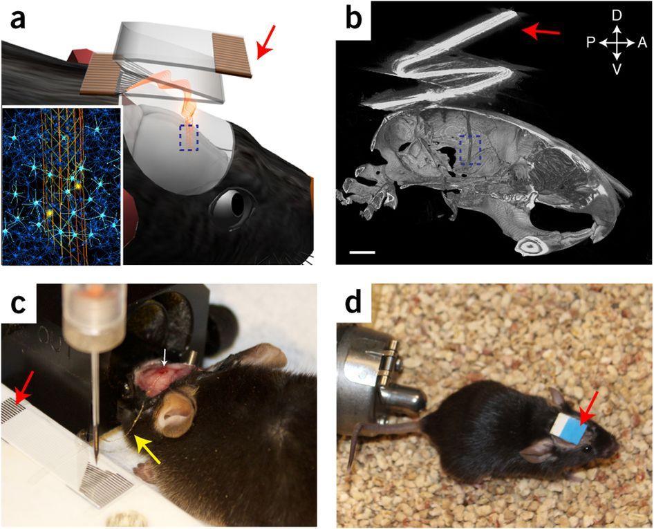Гибкие электроды помогут следить за нейронами долгие годы