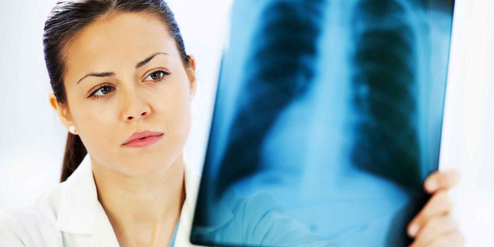 люди не должны умирать от туберкулеза, он излечим