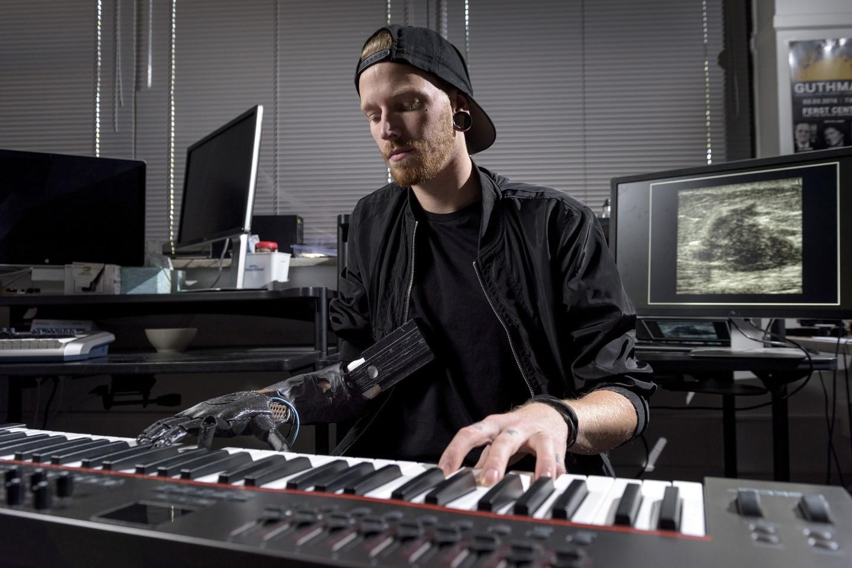 музыкант, потерявший руку, сыграл на фортепиано при помощи революционного протеза