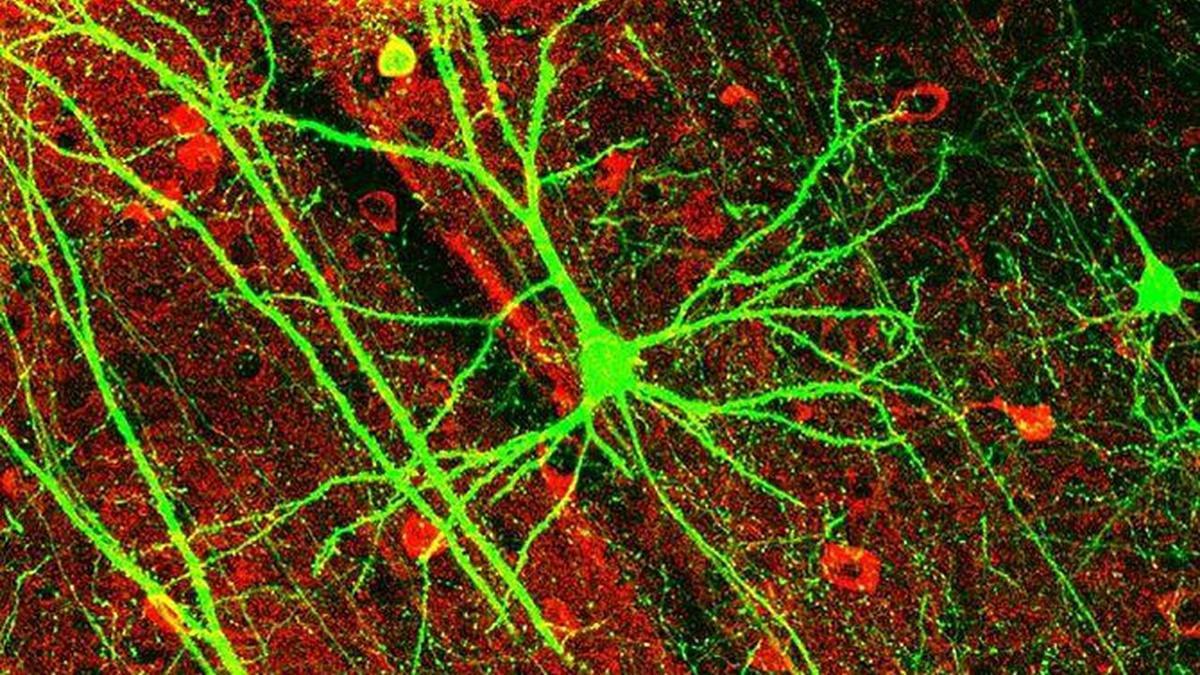 вековые представления о работе нейронов мозга оказались ошибочными