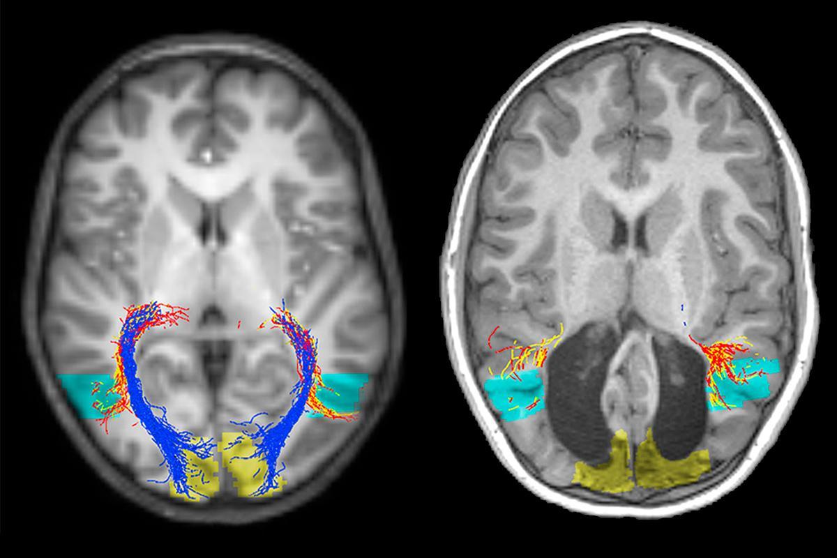 Радиологические исследования станут ещё быстрее и точнее