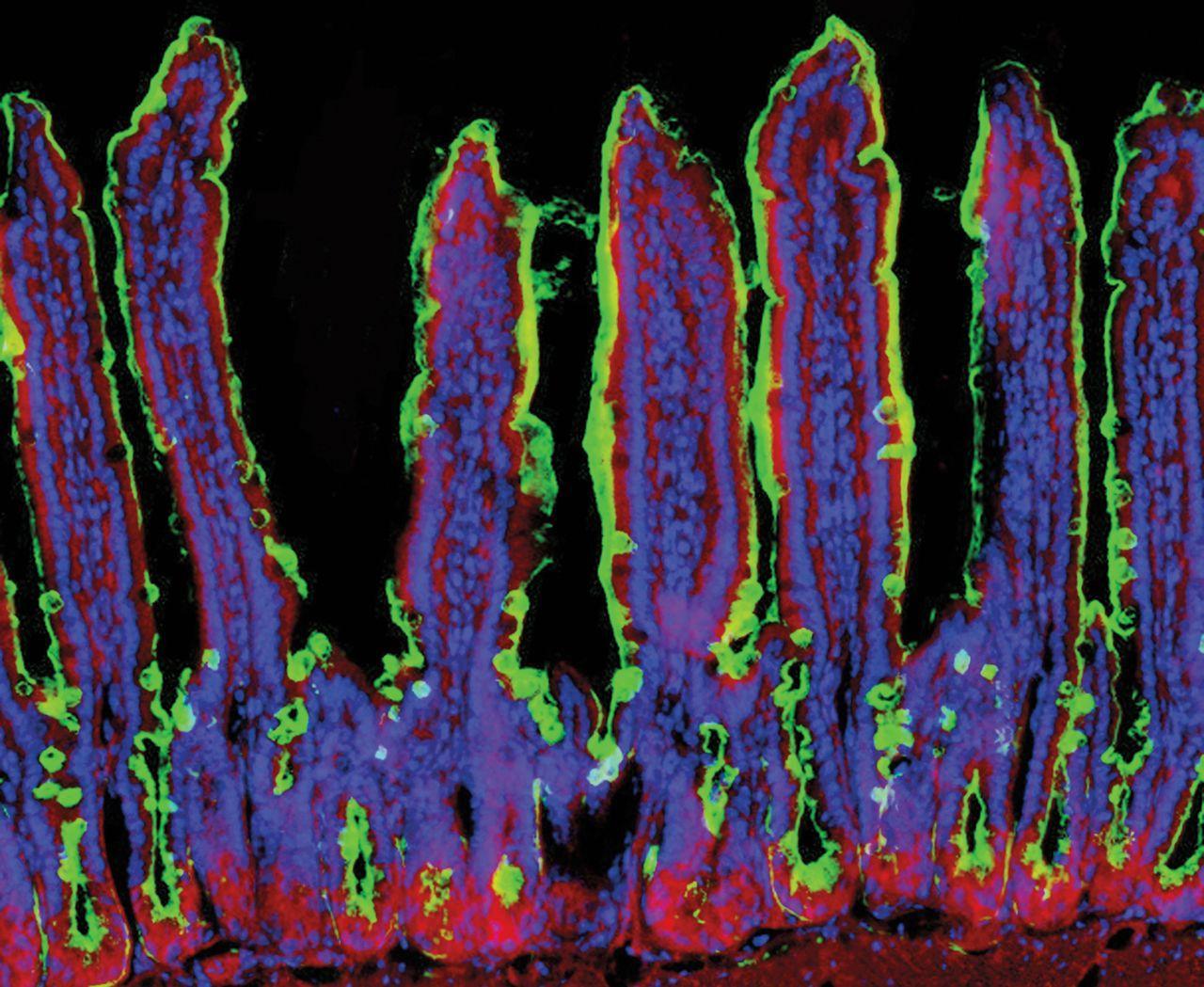 повторные легкие отравления вызывают тяжелые заболевания кишечника
