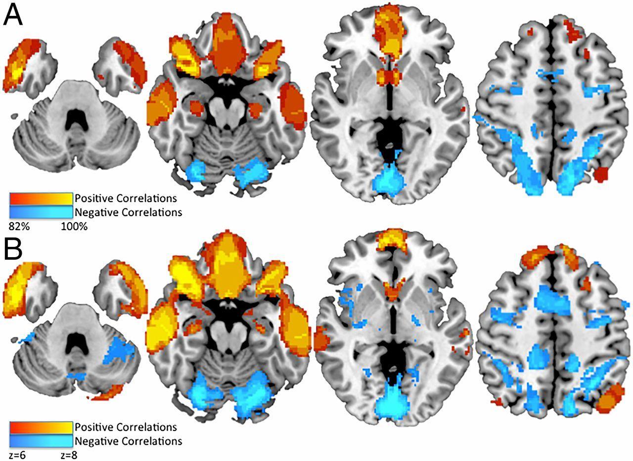 Ученые нашли связь между повреждениями мозга и криминальными наклонностями