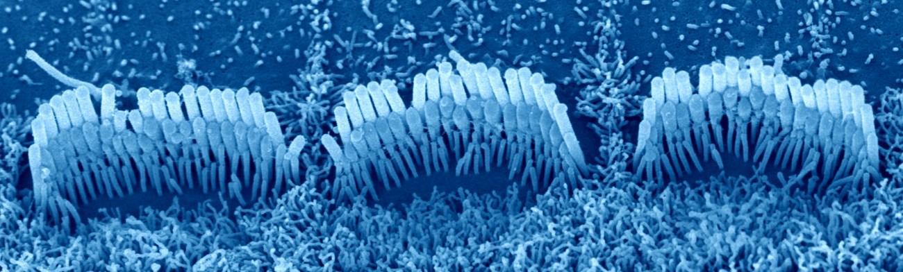 генная терапия восстановила слух у глухих мышей