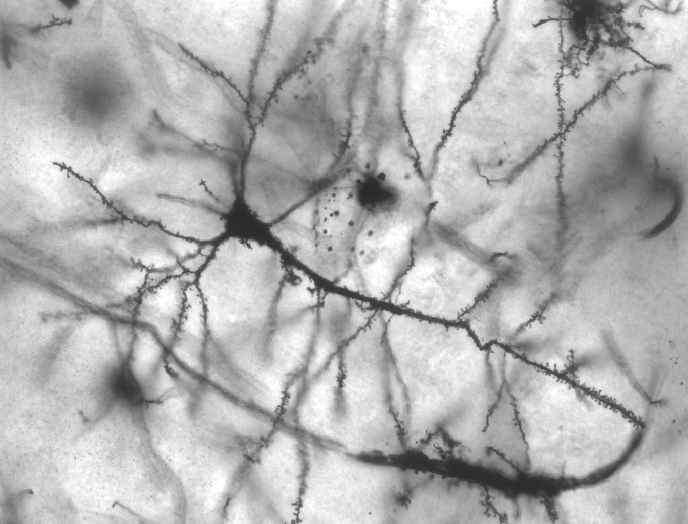 развитие мозга, мутации, рак мозга и аутизм