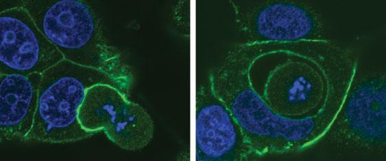 Клеточный каннибализм рассмотрели в деталях