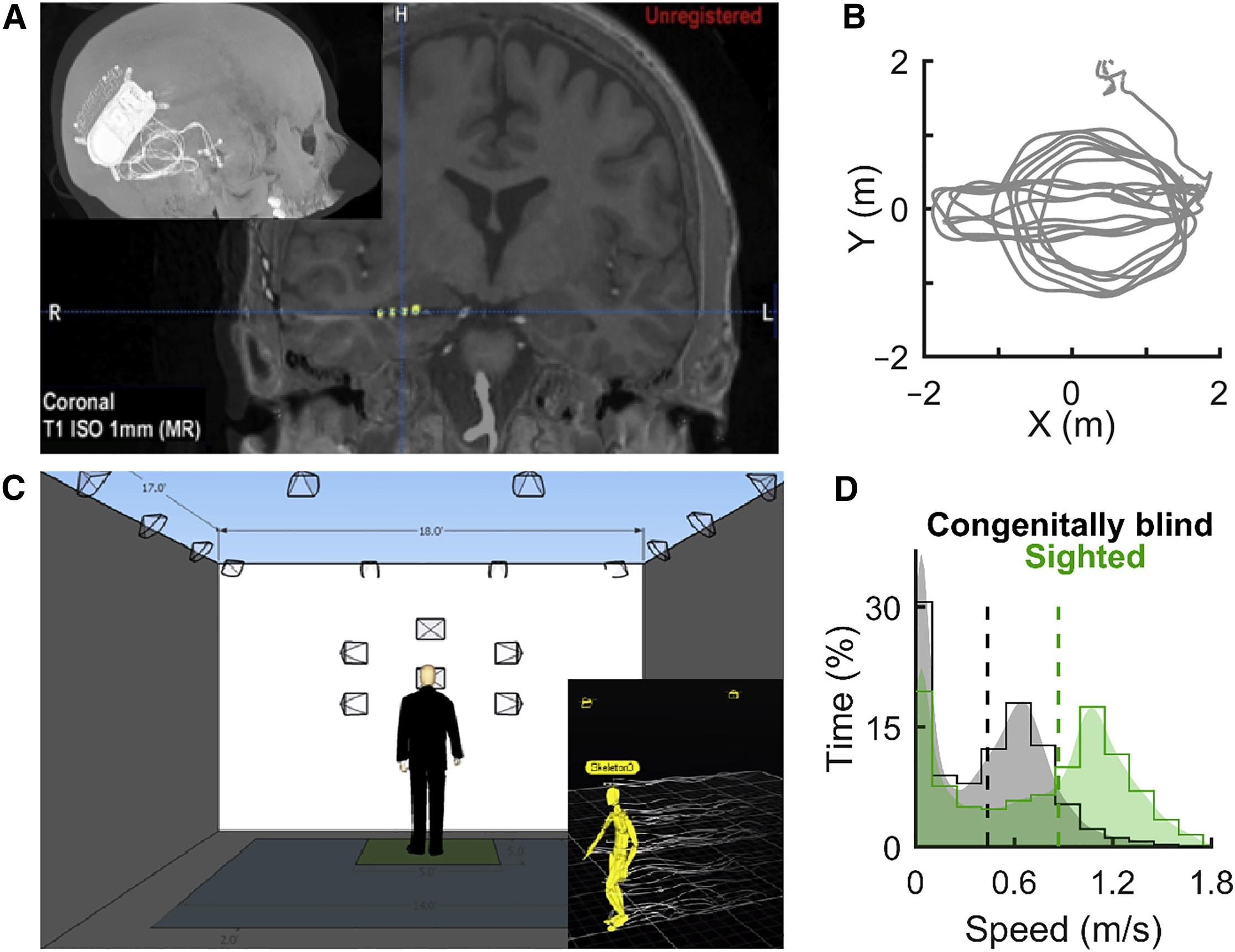 Как выглядят ритмы пространства в головном мозге