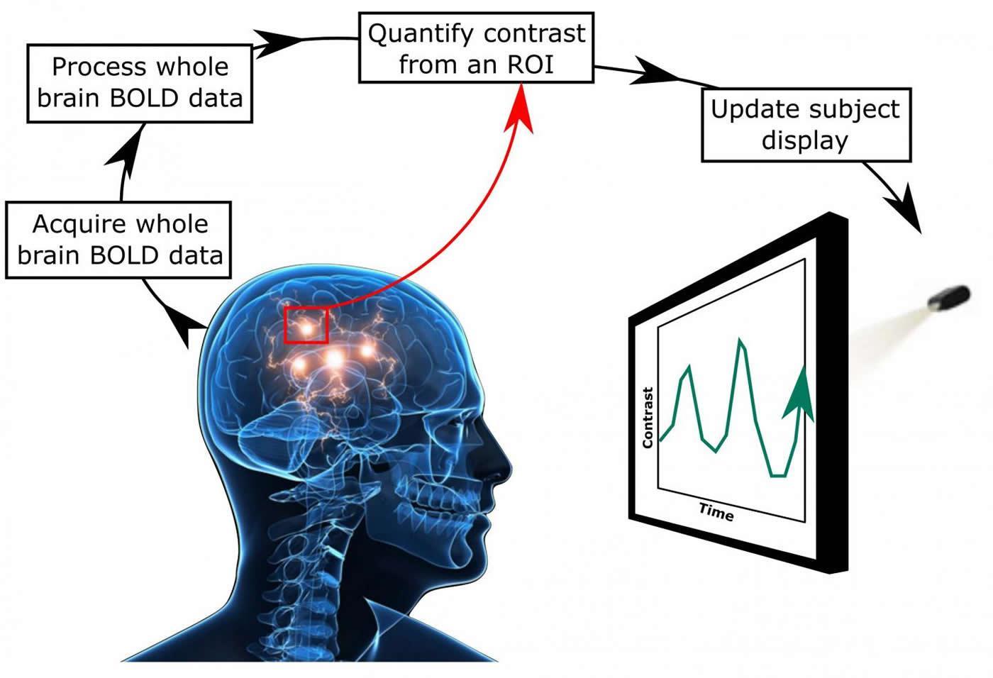 нейрофидбек вылечит шум в ушах