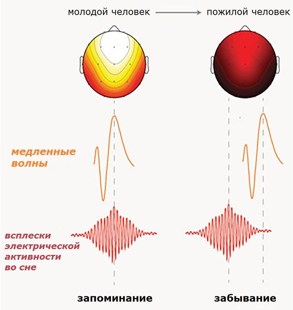 Пожилые люди теряют память из-за «неправильных» мозговых ритмов во время сна