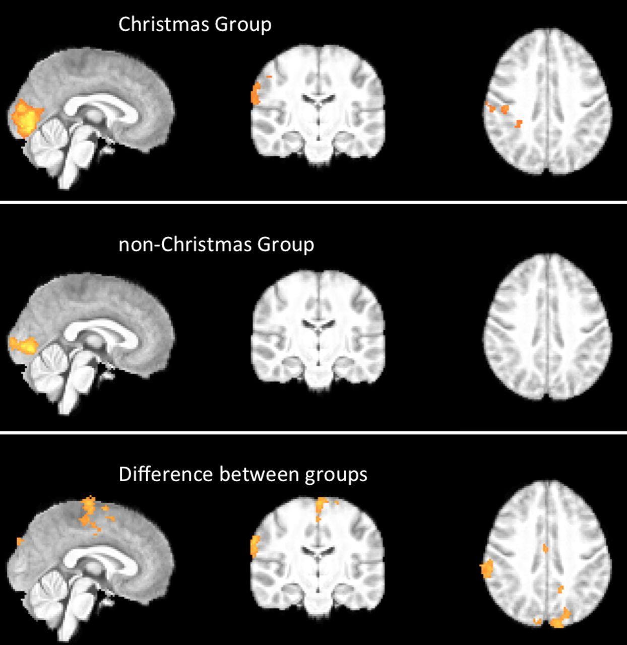 Где в мозге «селится» дух Рождества?
