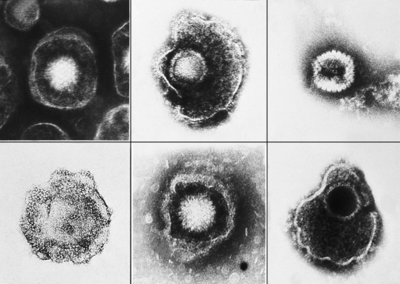 Вирус герпеса просыпается в космосе